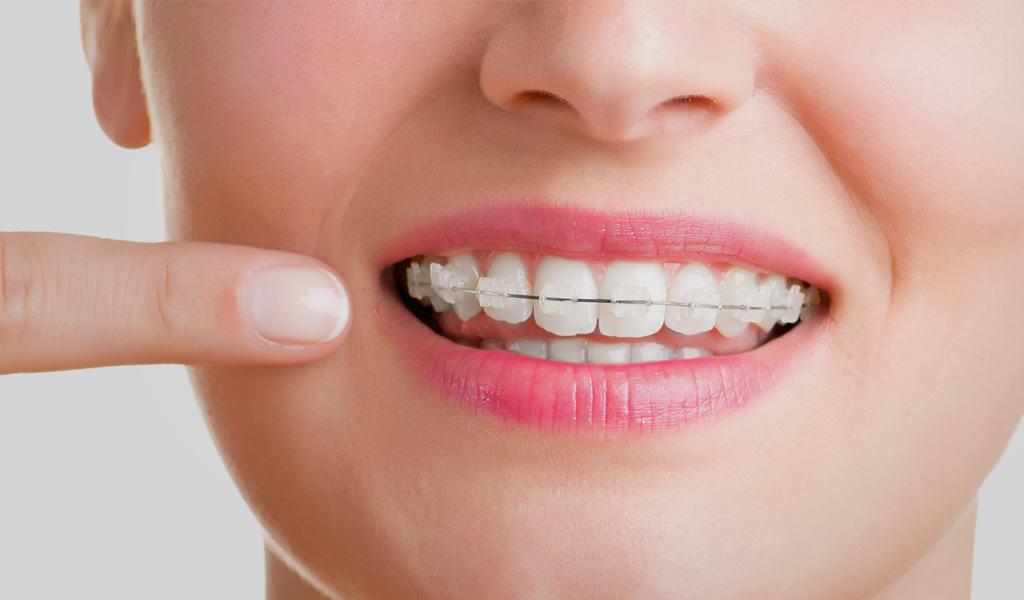 ortodoncia en Sagunto