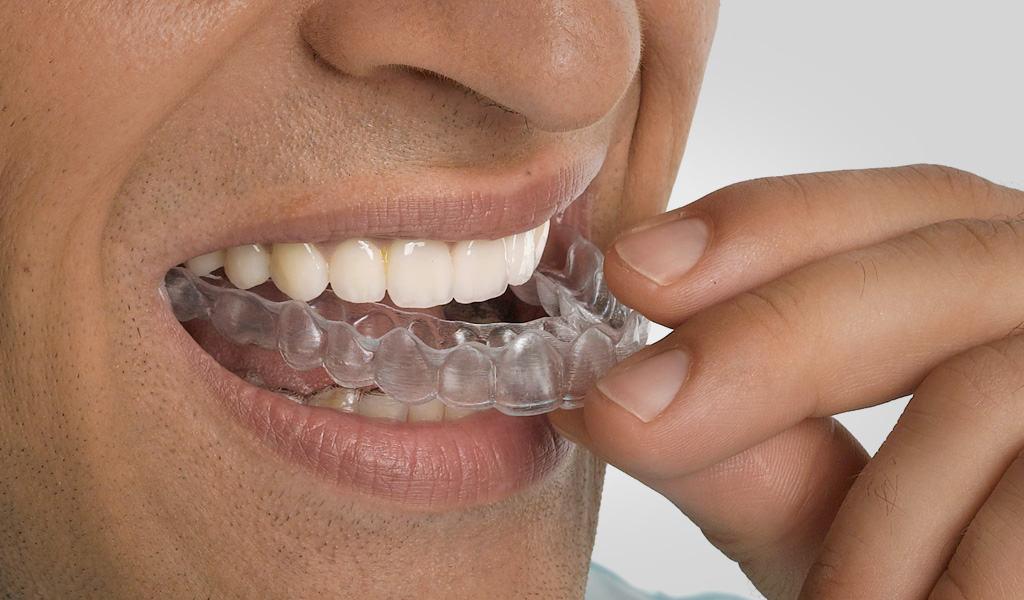 ortodoncia en Puerto de Sagunto