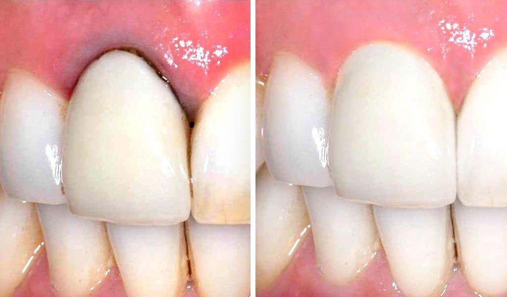 estética dental en Valencia y Puerto Sagunto